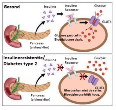 Teveel suiker zorgt voor insuline resistentie